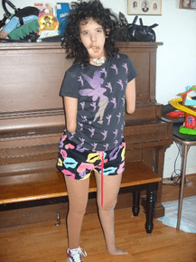 Living With… Multiple Congenital Birth Anomalies